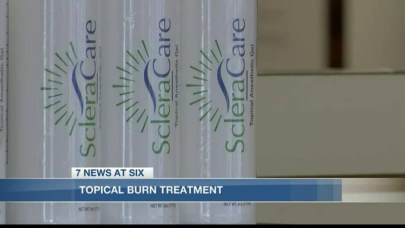 Local pharmacist creates solution for post-radiation burns